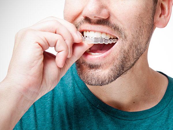 Dental Occlusal Splint dentist Mooroolbark
